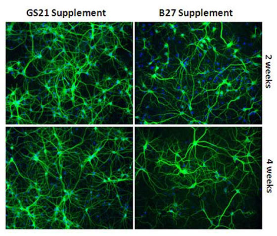 AMSBIO:Improving Overall Growth & Performance of Primary Neurons